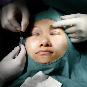 "Zhang seen as she goes through the so-called ""double eyelid surgery"" in a plastic surgery clinic in Shanghai"