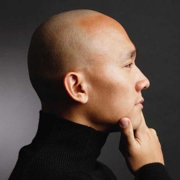 Bald-w