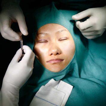Plastic-Surgery-w