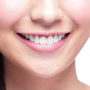 Smile-w